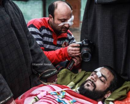 kanran yusuf pic pellet journo attack 2019-01-23 at 3.58.57 pm