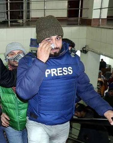 pellet journo kashmir 3